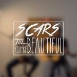 Alessia Cara dévoile un clip touchant avec « Scars To Your Beautiful »